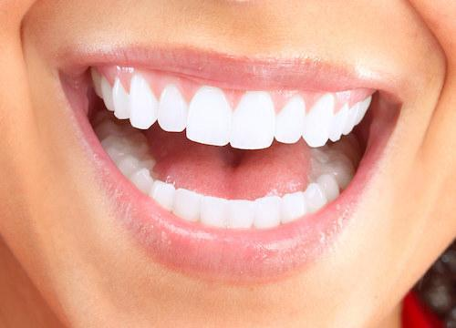 Bright smile close up l Dental Crowns at Kalaheo Dental Group