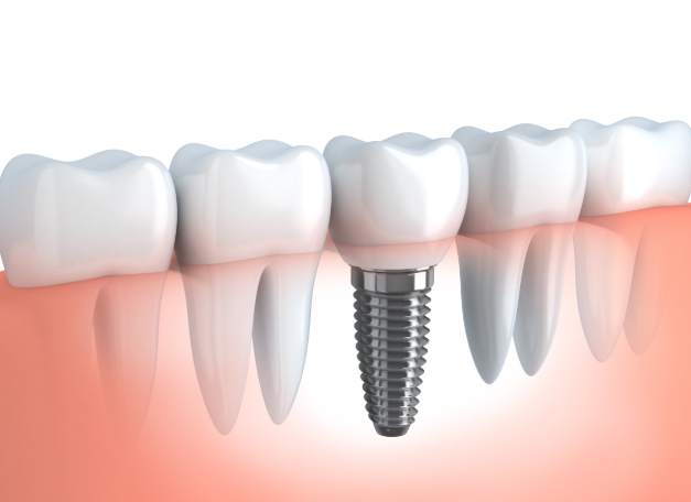 Diagram of Dental Implant & Titanium Root