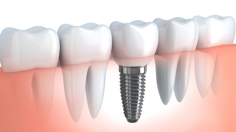 Dental Implants | Kalaheo, HI | Kalaheo Dental Group