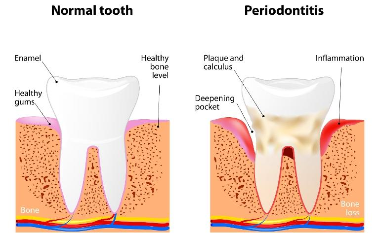 graphic of a normal tooth and a tooth with periodontitis