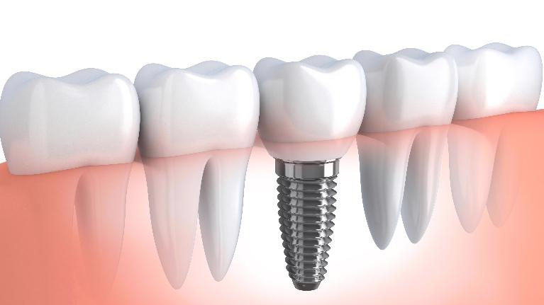 Dental Implants Kalaheo HI