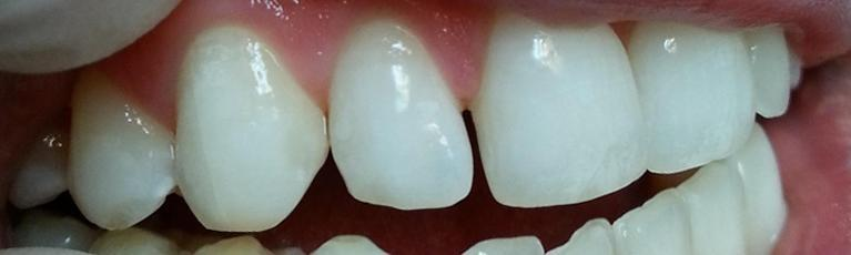 Spaces in front teeth | Kalaheo Dental Group | Kalaheo, HI