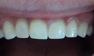 Veneers after | Kalaheo Dental Group | Kalaheo, HI