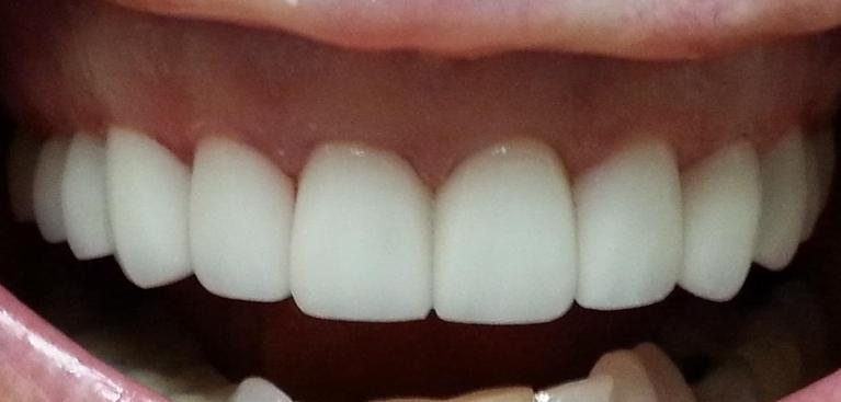 Porcelain-Crowns-and-Veneers-After-Image